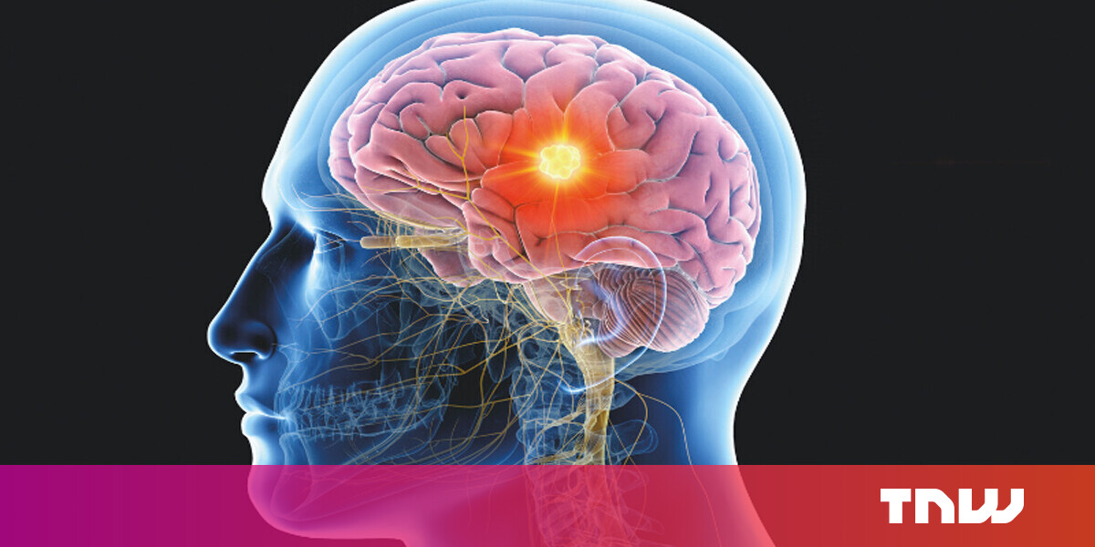 Internet marketing The distorted idea of 'cool' brain research is stifling psychotherapy